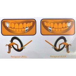 Kit de 10 angulateurs plastique Periapical (orange) Taille 2